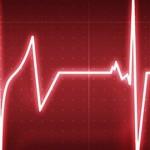 Как снять приступ аритмии