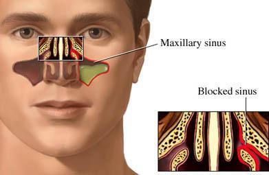 blockage-of-sinuses