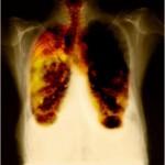 Химиотерапия при раке легкого
