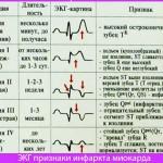 ЭКГ при инфаркте миокарда необходимо
