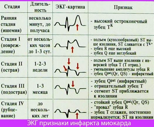 ekg-priznaki-infarkta-miokarda