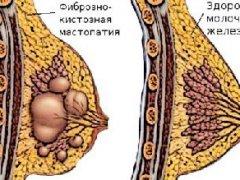 Симптомы фиброзно кистозной мастопатии