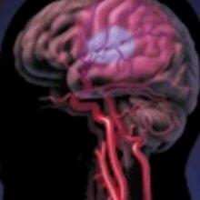 Умеренная внутренняя гидроцефалия
