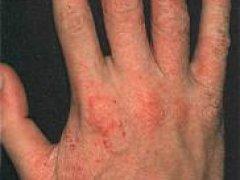 Лечение атопического дерматита у взрослых