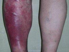 Особенности такого недуга как инфекционные и паразитарные болезни