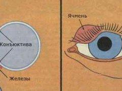 Как лечить ячмень на фото
