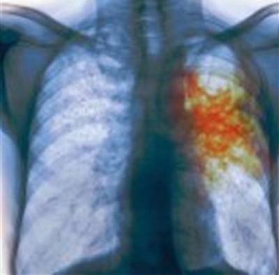 Температура при туберкулезе может быть не всегда