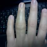 Лечение ушиба пальца руки