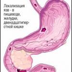 Прободная язва двенадцатиперстной кишки – опасное состояние