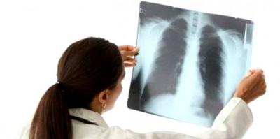 Как лечить пневмонию: дома или в больнице?
