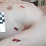Какие смертельные раны наиболее часто встречаются в медицинской практике