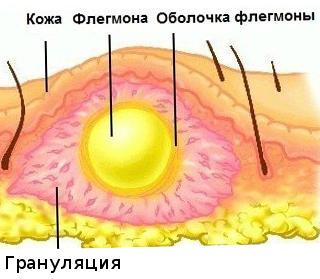 флегмона голени