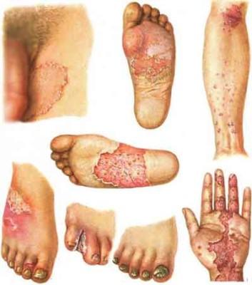 epidermofitia