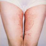 Как выглядит эпидермофития на фото, ее симптомы и лечение