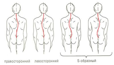 skolioz (1)
