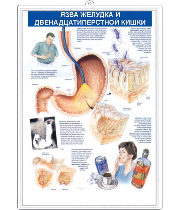 Что нужно знать об операции при язве желудка
