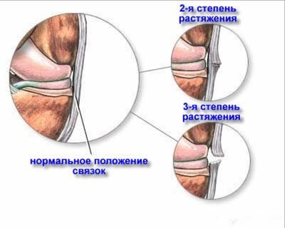 Растяжение связок руки: симптомы, первая доврачебная помощь и лечение