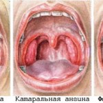 Лакунарная ангина на фото, симптомы и ее лечение