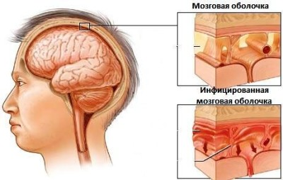 meningit