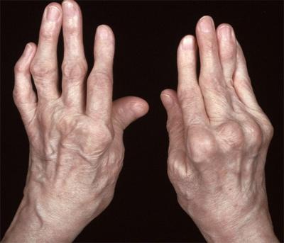 Почему возникает артрит кисти и как бороться с заболеванием