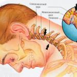 Симптомы остеохондроза шейного отдела, причины и особенности