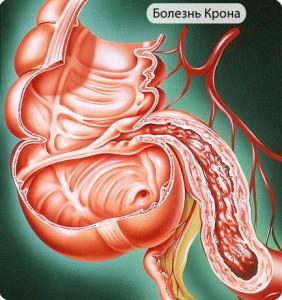 При болезни Крона поражается желудочно-кишечный тракт в большом объеме