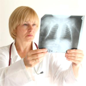 Пневмония - опасное заболевание легких