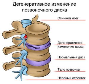 Изменения позвоночного диска при остеохондрозе