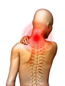 Клинические проявления остеохондроза
