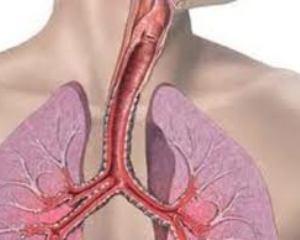 Одышка - это затруднение прохождения воздуха в лёгкие или из лёгких