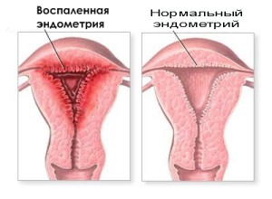 Воспаление матки или эндометрит - опасное заболевание