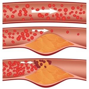 Церебральный атеросклероз — главная причина инсульта