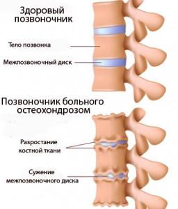 Остеохондроз пояснично-крестцового отдела позвоночника сопровождается болевыми ощущениями в спине и пояснице