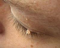 Папилломавирусная инфеция относится к заболеваниям с высокой онкогенностью