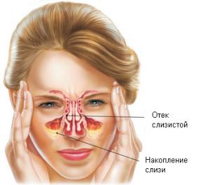 Гайморит – воспаление слизистой оболочки околоносовых пазух