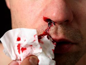 При геморрагическом синдроме происходят сильные кровоизлияния