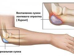 Эффективное лечение бурсита народными средствами