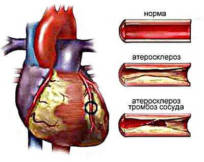 Кардиосклероз атеросклеротический: симптомы и причины. Кто в группе риска?