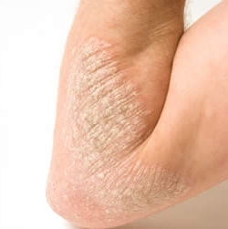 Акридерм крем применяется при лечении дерматитов разной формы