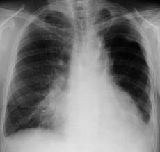 Рентгенологическое исследование имеет огромное значение в изучении состояния органов дыхания