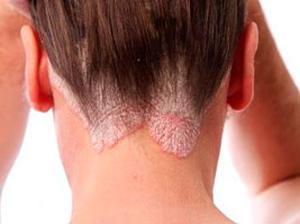 Cеборея – особое состояние кожи человека, когда салоотделение работает в усиленном режиме