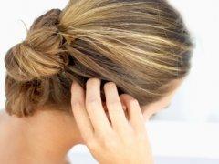 Что такое себорея, ее разновидности и методы лечения
