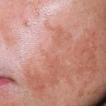 Удаление пигментных пятен: как быстро и эффективно улучшить состояние кожи?