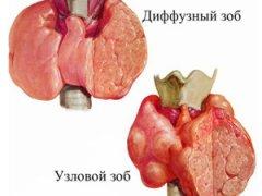 Результат ультразвуковой диагностики: диффузное увеличение щитовидной железы