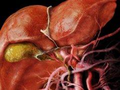 Склерозирующий холангит: причины, симптомы, лечение
