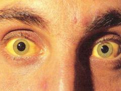 Один из симптомов заболевания - холестатическая желтуха