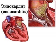 Септический эндокардит. Что это такое?