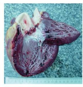 По своему происхождению, септический эндокардит делится на первичный и вторичный