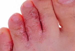 Микозы кожи стоп сопровождаются появлением пузырьков с жидкостью, зудом, болевыми ощущениями