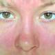Аллергия на нервной почве: причины и лечение